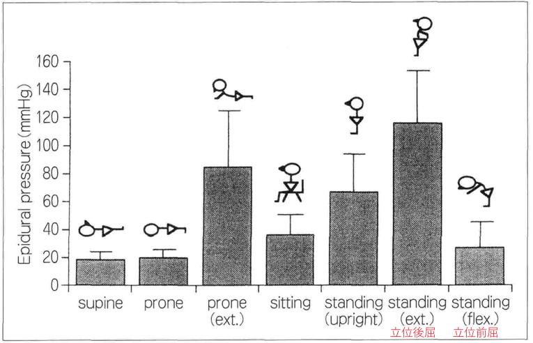 図1 姿勢と狭窄部硬膜圧(文献1より一部改変して引用)